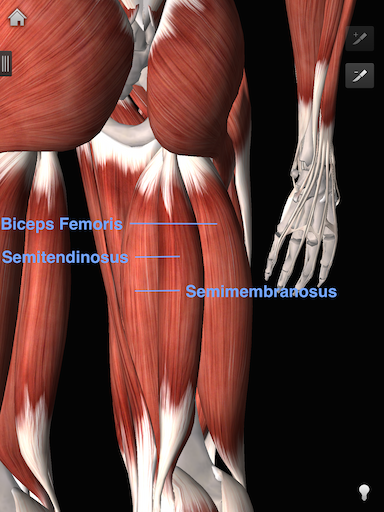 Gomis hamstring injury (courtesy iMuscle 2)